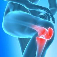 Bolest kloubů: Jaké přípravky doopravdy pomáhají? Expert radil on-line